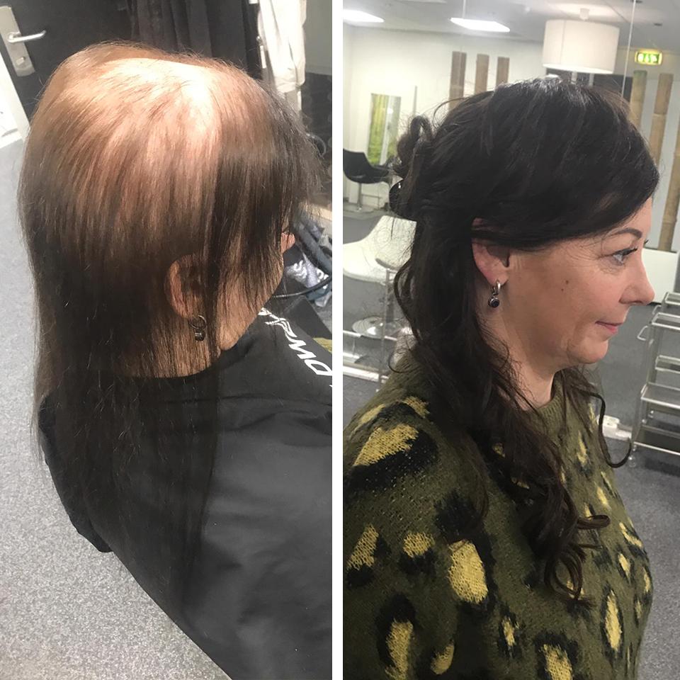 De Oplossing Tegen Kaalheid En Steeds Dunner Wordend Haar